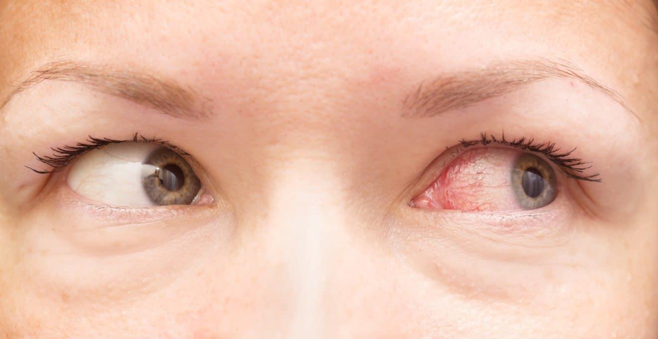 como-se-si-soy-alergica-al-polen-salud180