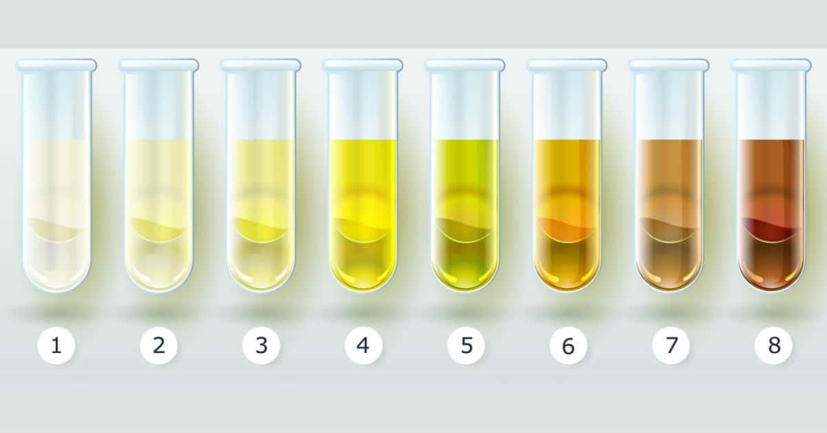 cosas_que_revela_el_color_de_tu_orina_sobre_tu_salud