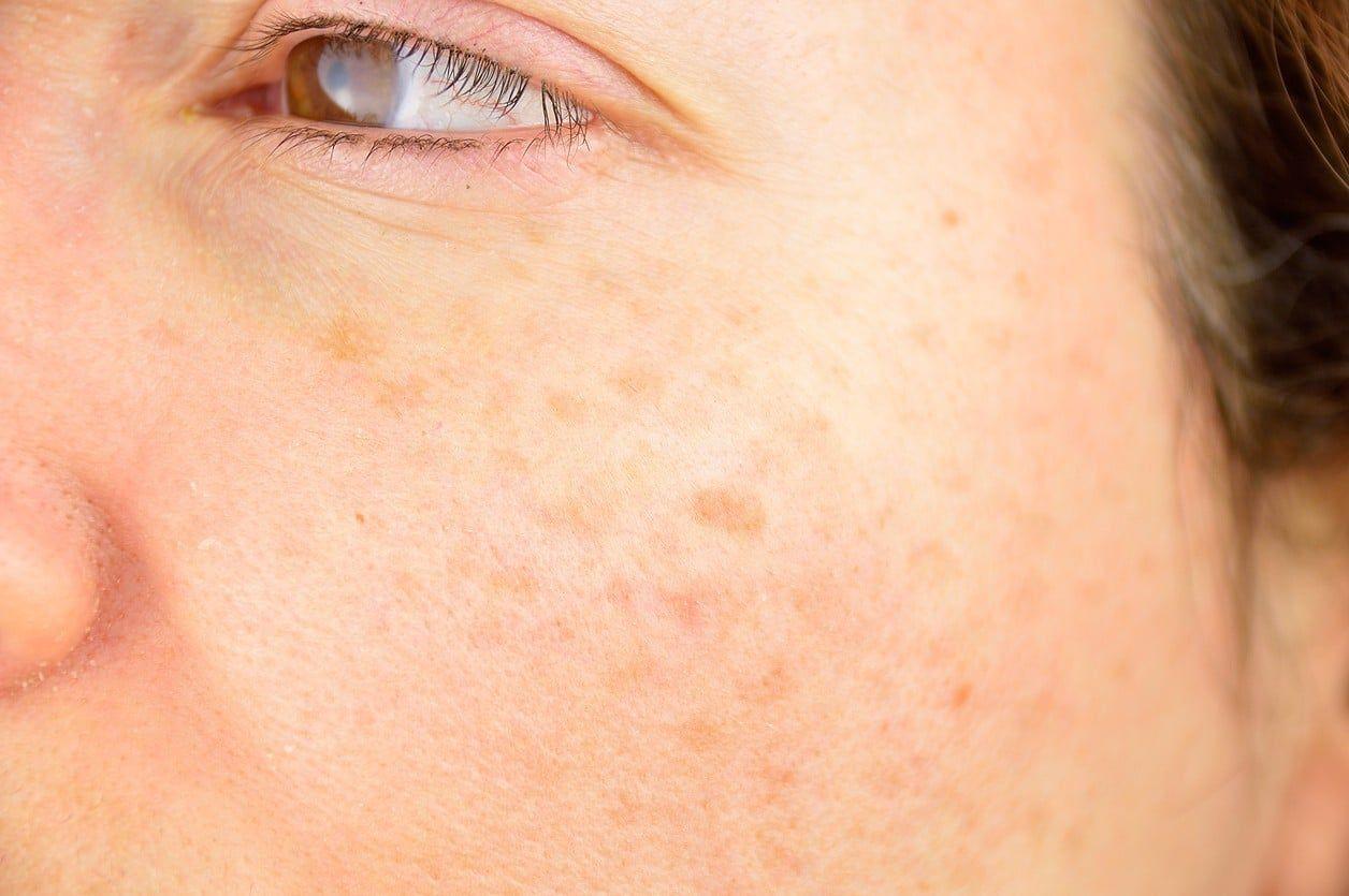 como-preparar-un-jabon-de-perejil-para-eliminar-las-manchas-en-el-rostro-salud180